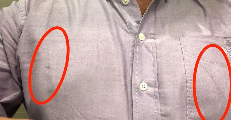 Marcas das alças na camisa.